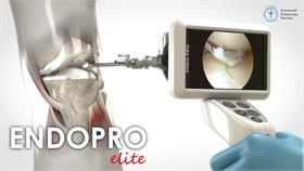 ENDOPRO-CAM® Elite: Arthroscopy